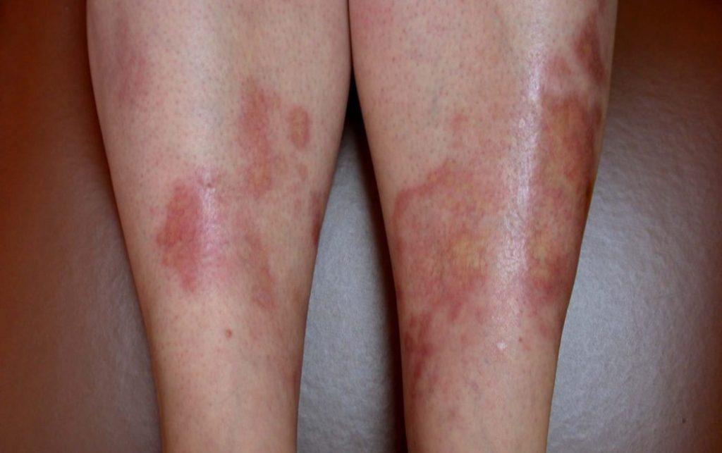 Диабет высыпания на коже в детей